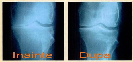Osteoartrita forum